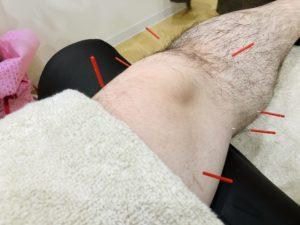 膝関節痛 鍼