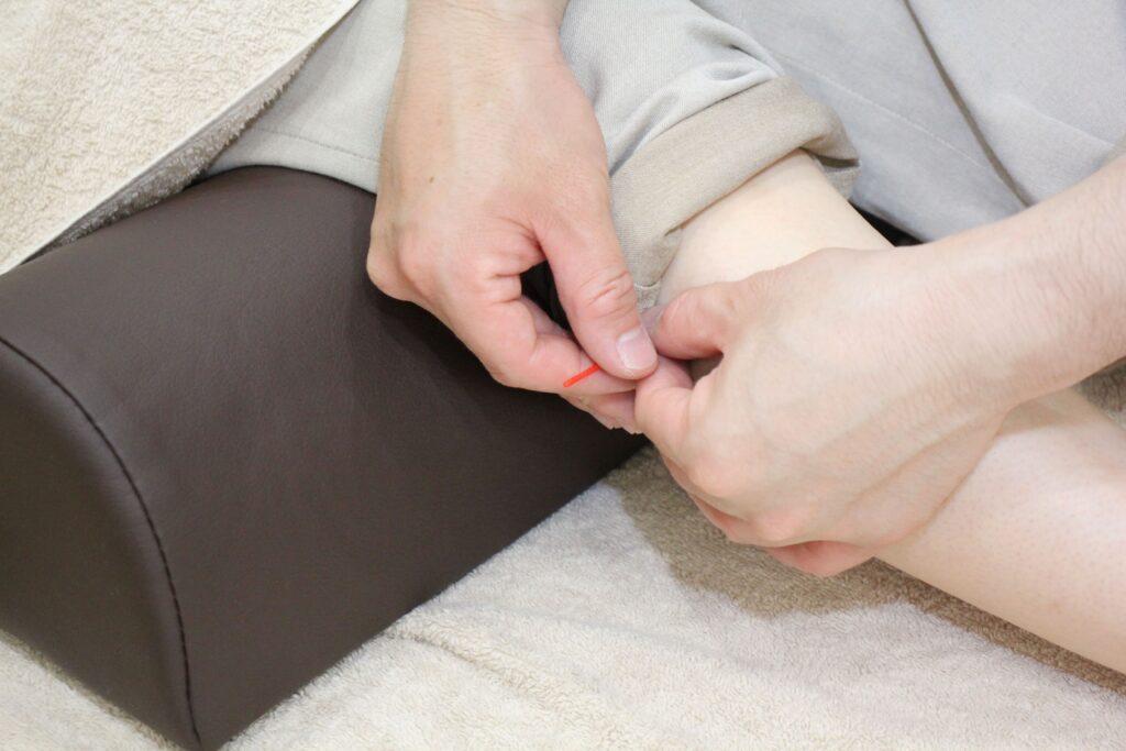 松戸 鍼灸