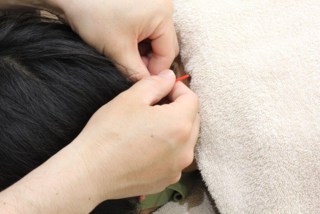 松戸 鍼灸院